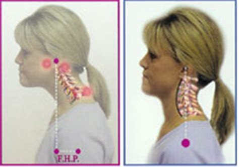 Is It Bad To Hump Pillows by Alternative Scoliosis Treatment With Charlottesville