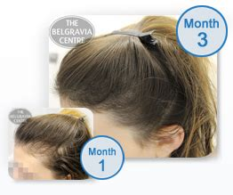 treating hair fall women over 50 frontal fibrosing alopecia a woman s receding hairline