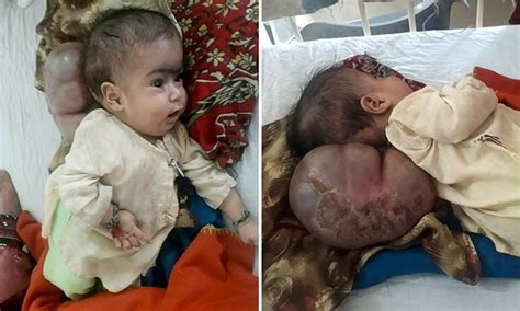 how pakistani make baby head pakistani baby girl has brain bulging out of her neck