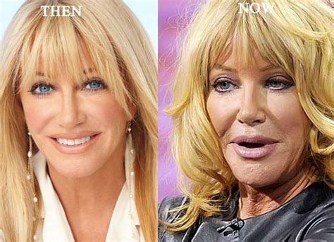 suzanne somers celebrity plastic surgery 24 suzanne somers plastic surgery before and after photo