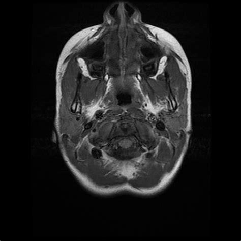 Copy Mri The Central Nervous System t1