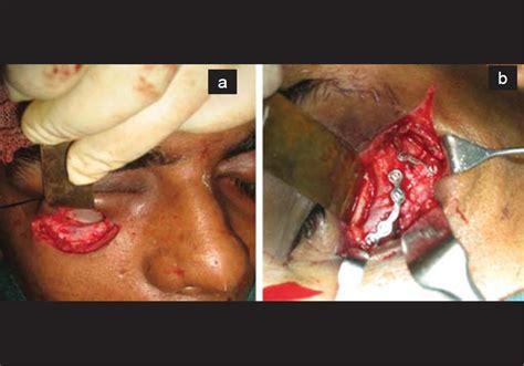 Orbital Floor Fracture Repair by Mandibular Symphysis Graft Versus Iliac Cortical Graft In