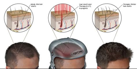 light therapy for hair growth hair regrowth regrow hair at home with igrow light