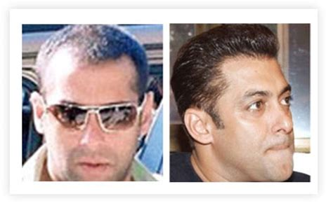 salman khan hair transplant cost celebrity hair transplants in fashion for bald celebrities