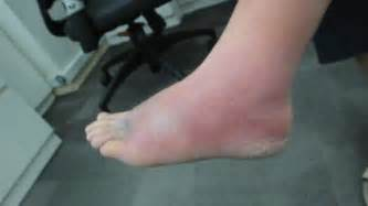 Cellulitis most commonly affects one of your legs although symptoms