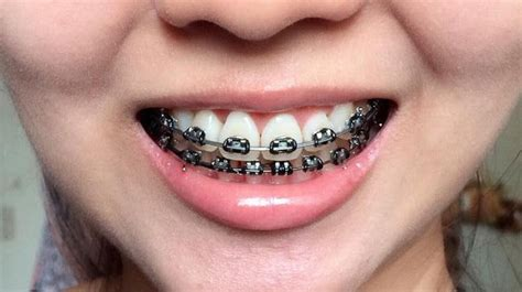 black color braces image result braces colors braces colors