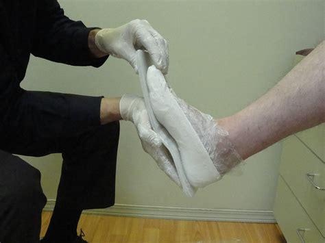 The Shelf Orthotics by Custom Foot Orthotics B D Mitchell Prosthetic