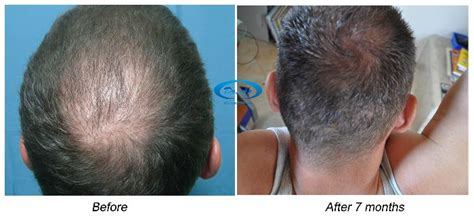 hair transplant timeline photos crown hair transplant timeline crown hair transplant