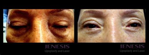 laser tattoo removal san jose laser eye fatpad removal san jose lower eyelid