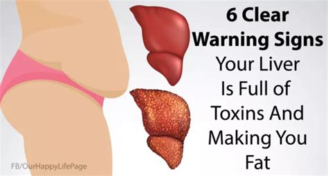 Signs Your Liver Needs A Detox by Pankaj Kashyap 6 Signs That Your Liver Is Of Toxins