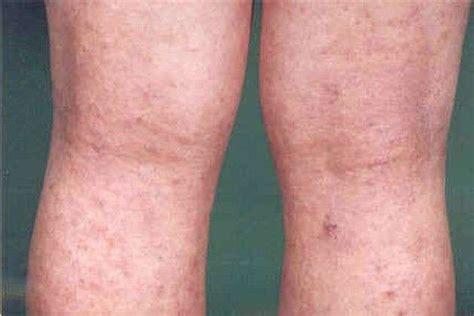 dermatite atopica bambini alimentazione dermatite atopica come riconoscere i sintomi foto 33 40
