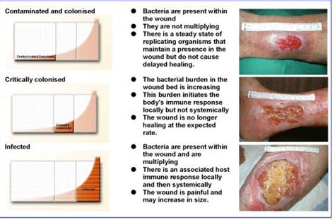 Wound Bed Description by Friable Granulation Tissue Wound Care Education