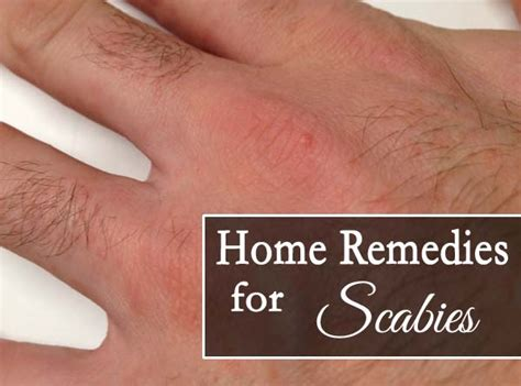 top 10 home remedies for scabies that works