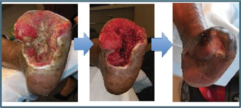 best treatment for open wounds hyperbaric oxygen therapy wound healing pictures to pin on