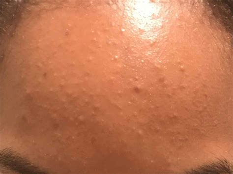 Galerry small skin bumps on face