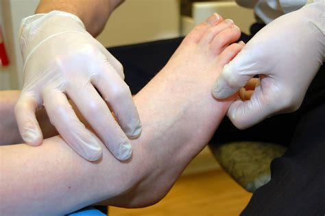Common Foot Problems by Common Foot Leg Problems Ashburnham Foot Ankle