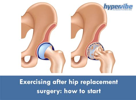 when can i start exercising after a c section exercising after hip replacement surgery how to