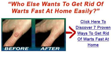 Can You Get Planters Warts On Your Fingers by Warts Medicine Wart Treatment Info