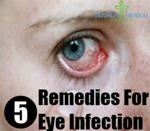 home remedy for eye infection 5 remedies for eye infection search herbal home remedy