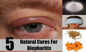 itchy eyelids home remedy 5 cures for blepharitis how to cure blepharitis