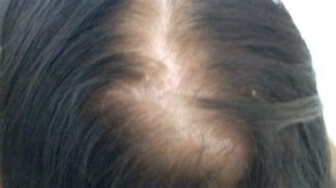 alopecia hair loss in women female hair loss treatment androgenetic alopecia causes