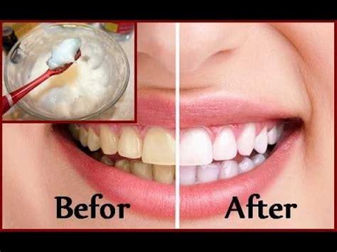 diy teeth whitening  home   minutes youtube
