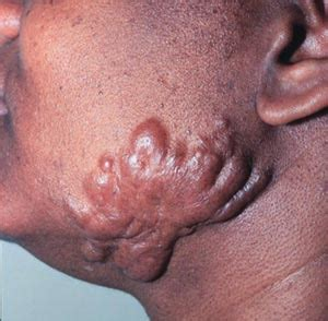 internal infection after c section image gallery infected scar tissue