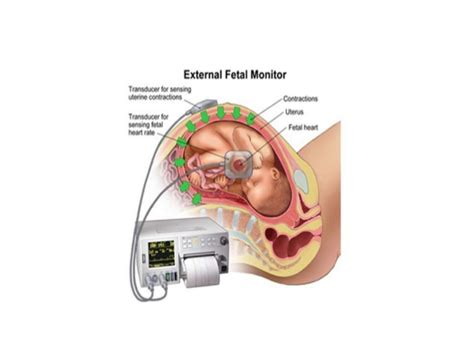 pregnancy risk swinging screening of high risk pregnancy