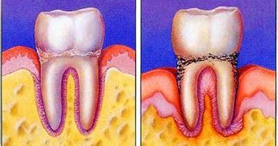 Biaya Pemutihan Gigi Di Dokter biaya operasi gigi bungsu berapa yahh berikut ini