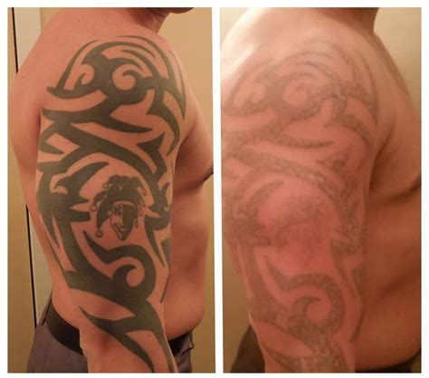 half sleeve tattoo removal removal before and after sleeve thepix info