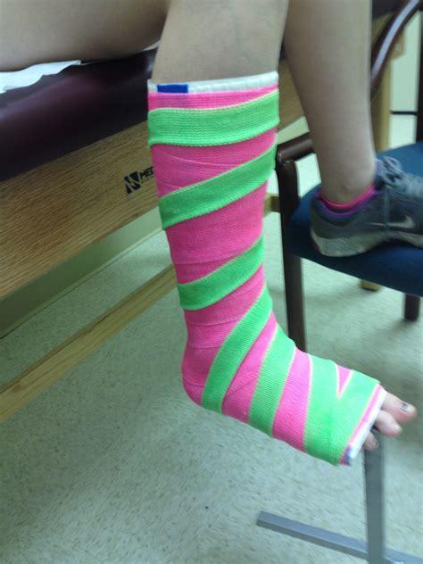 leg cast colors leg cast with stripes fiberglass leg