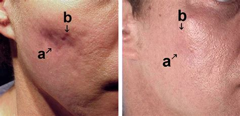 acne scar treatments dermatology associates of atlanta ga