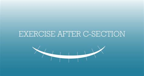 exercise after caesarean section exercise after c section mutu system postpartum recovery