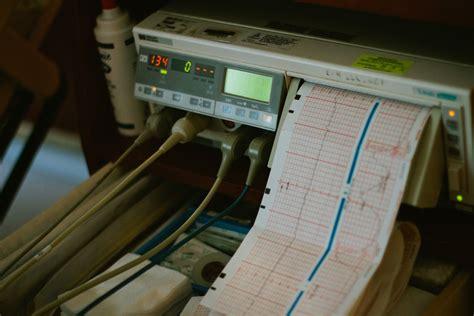 Mesin Ekg pemasangan ekg elektrokardiogram perawatan kesehatan