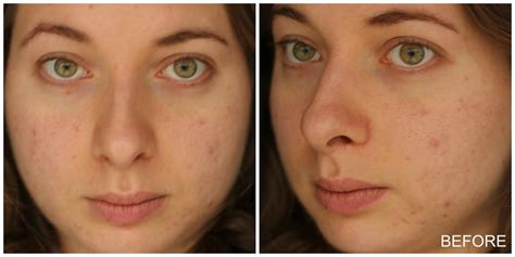 light chemical peel before and after my chemical peel experience with epiderma