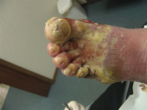 yeast infection diabetic foot foot ulcer diabetic