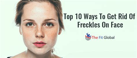 10 Ways To Get Rid Of Freckles by Freckles On Www Pixshark Images Galleries