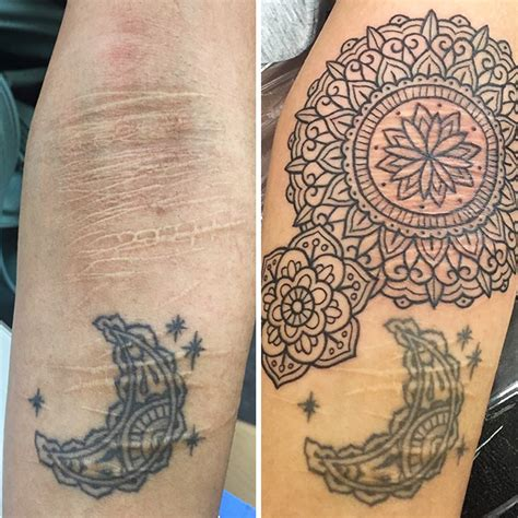 tattoos that cover up scars 10 amazing tattoos that turn scars into works of