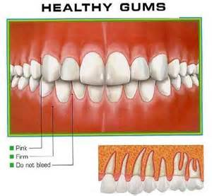 what color should your gums be gum disease pa green dentist
