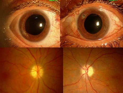 does eye color affect peripheral vision effects on our humaneyeproject
