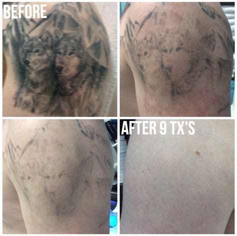 revlite tattoo removal reviews 100 laser ink picosure laser week 3 post 1st