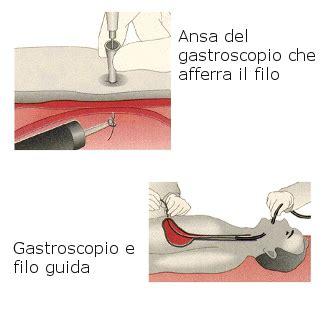 peg alimentazione enterale gastrostomia percutanea roma dott prof antonio