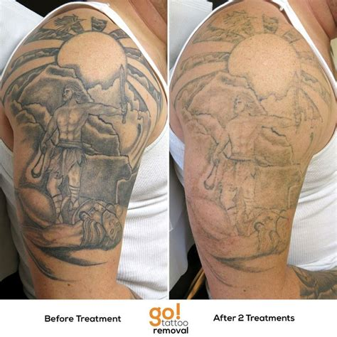 black and grey tattoo removal black and grey shading typically fades pretty fast the