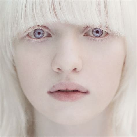 what color do albinos saccharinesylph what s your opinion on the
