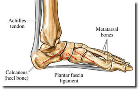 Plantar Fasciitis: How To Make It Go Away | The Barefoot ... Foot Arch Muscles