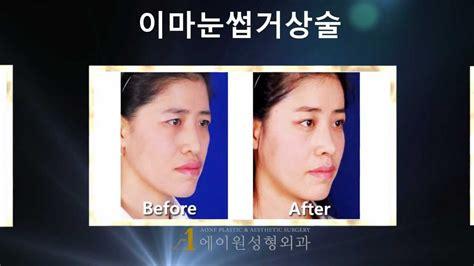 eyebrow lift korea korea aone plastic surgery before after endoforehead