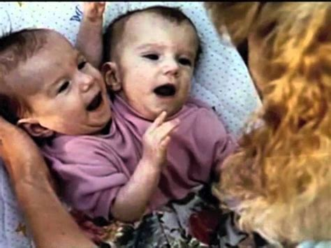 conjoined twins abigail and brittany hensel unusual facts about famous conjoined twins abby and