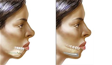 what should i expect when getting a chin length short wavy bob best chin augmentation in hyderabad chin surgery in
