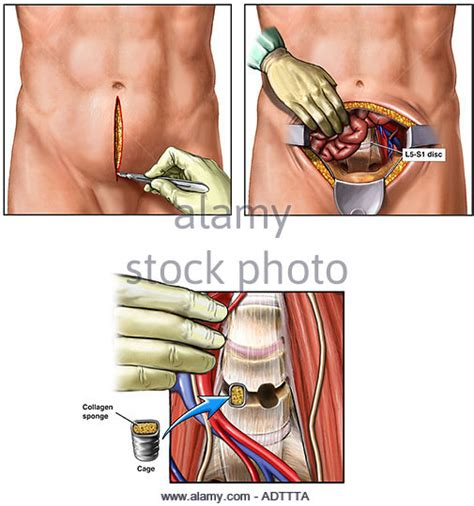 best spinal fusion surgeons l4 l5 back surgery wiring diagrams wiring diagram schemes