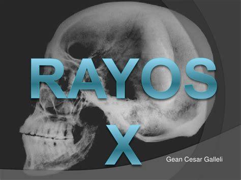 imagenes animadas rayos x rayos x